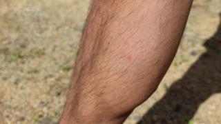 足のムダ毛